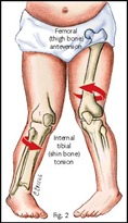 10_femoral_tibial_anteversion
